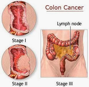Is Cancer A Disease Cancer Diseases Colon Cancer