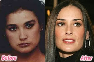 Demi Moore Plastic Surgery Before And After Breast