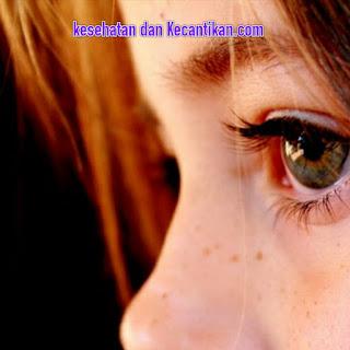 Cara terbaik mengatasi mata merah secara alami