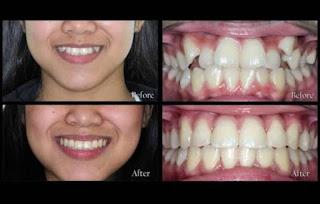 Dr. Jyoti sachdeva | Dento Hub Dental clinic