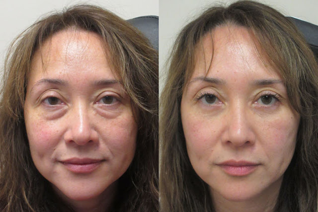 eye bag removal surgery malaysia
