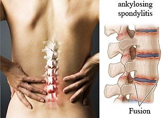 Is there any Home Remedy for Ankylosing Spondylitis to treat it at home?