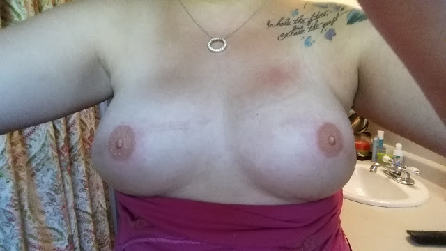 tattooing, nipple, nipples, breast cancer, survivor, reconstruction, nipple reconstruction, boobs, foobs, faux nips, rockstar tattoo, nipple tattooing, areola tattooing