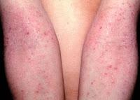 atopic dermatitis causes