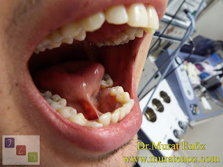 Tip 2 ön dil bağı - Dil bağı kesilmesi - Dil bağı videosu - Dil bağı kesildikten sonra - Dil bağı operasyonu - Dil bağı ameliyatı - Dil bağı tedavisi - Dil altı bağı kesilmesi - Dil altı bağı ameliyatı - Dil altı bağı operasyonu - Dil altı bağı tedavisi