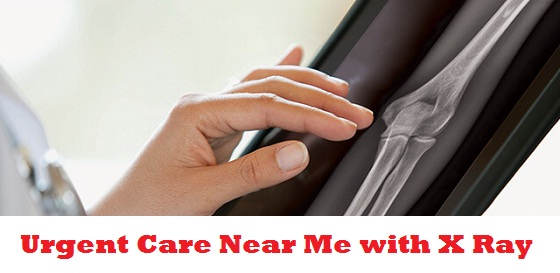 Urgent Care Near Me with X Ray