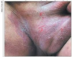 Image Cara Mengatasi penyakit gatal eksim menhun di Selangkangan