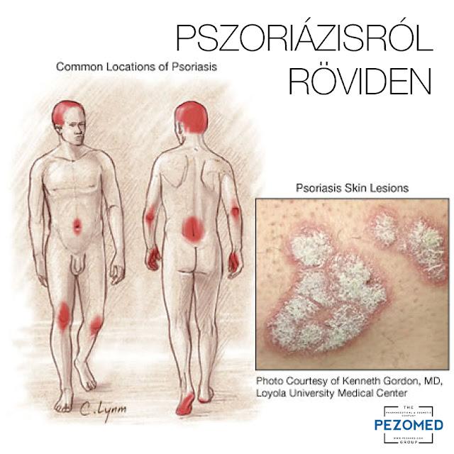 http://www.psorioderm.com/hu/a-borrol/borproblemak/pszoriazisrol-roviden:53