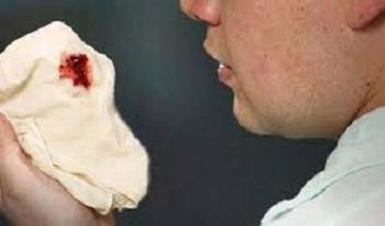 obat dahak berdarah karena infeksi paru