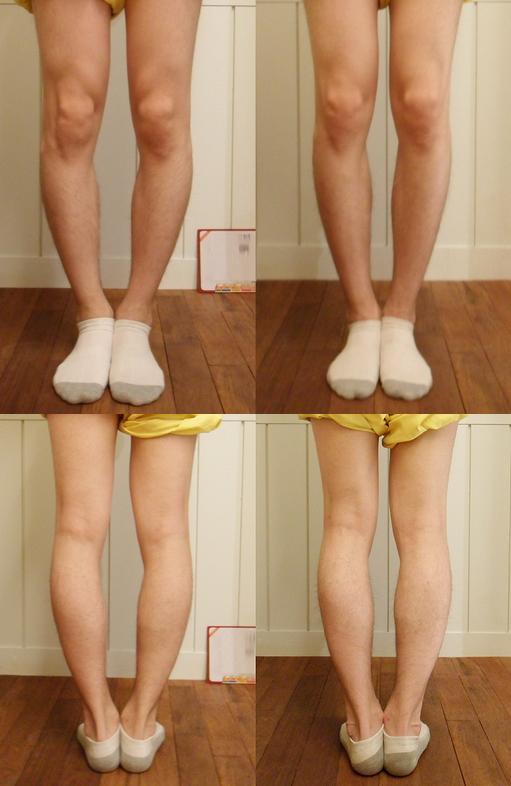 Yakson(약손명가): Curved Legs Treatment Price