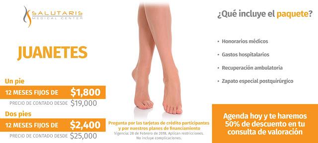 Precio Paquete Cirugia Pies Juanetes Hallux Valgus Bunionectomia Guadalajara Mexico