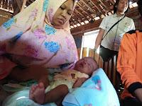 Bayi Tanpa Anus di Pati Tunggu Operasi Kedua