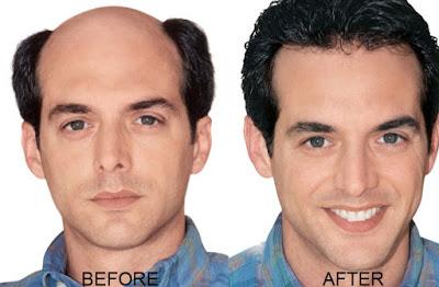 Image result for hair transplant disadvantages