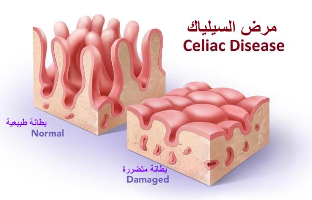 مجلتي علاج مرض السيلياك أو حساسية القمح