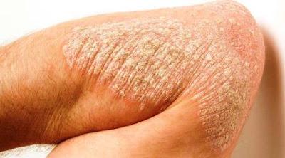 treatment plaque psoriasis