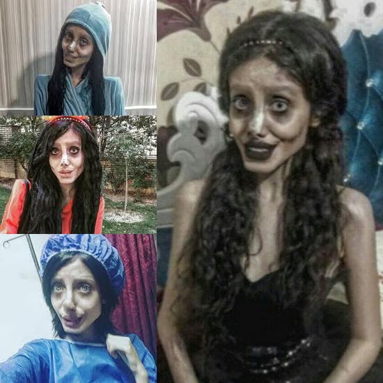 Ela queria ficar igual a Angelina Jolie e fez mais de 50 cirurgias plásticas - Img 1