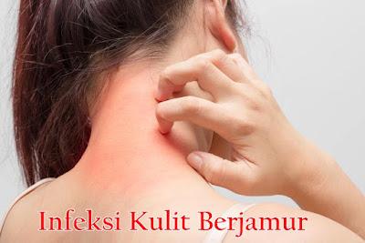 http://iroskesehatanherbal.blogspot.com/2018/11/obat-tradisional-untuk-infeksi-kulit.html