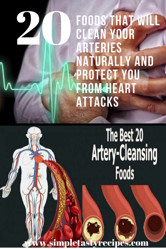 how to clear arteries naturally