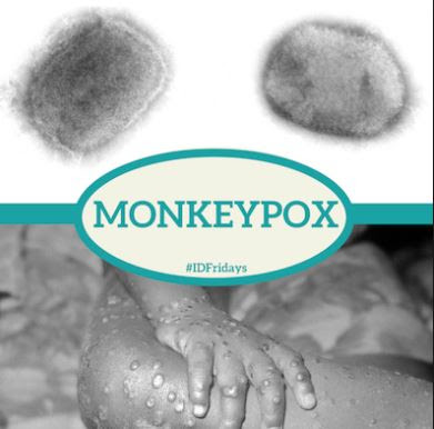 Monkeypox: 12 things you must know about deadly disease