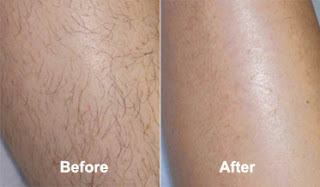 After and Before using Revitol Hair Removal