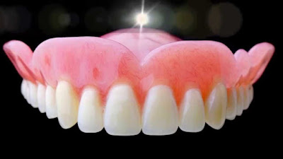 plaque-dentaire