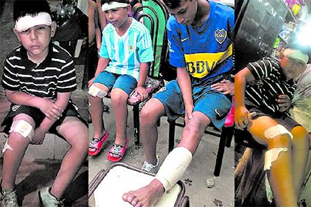 Niños murgueros heridos con balazos de goma de Gendarmería
