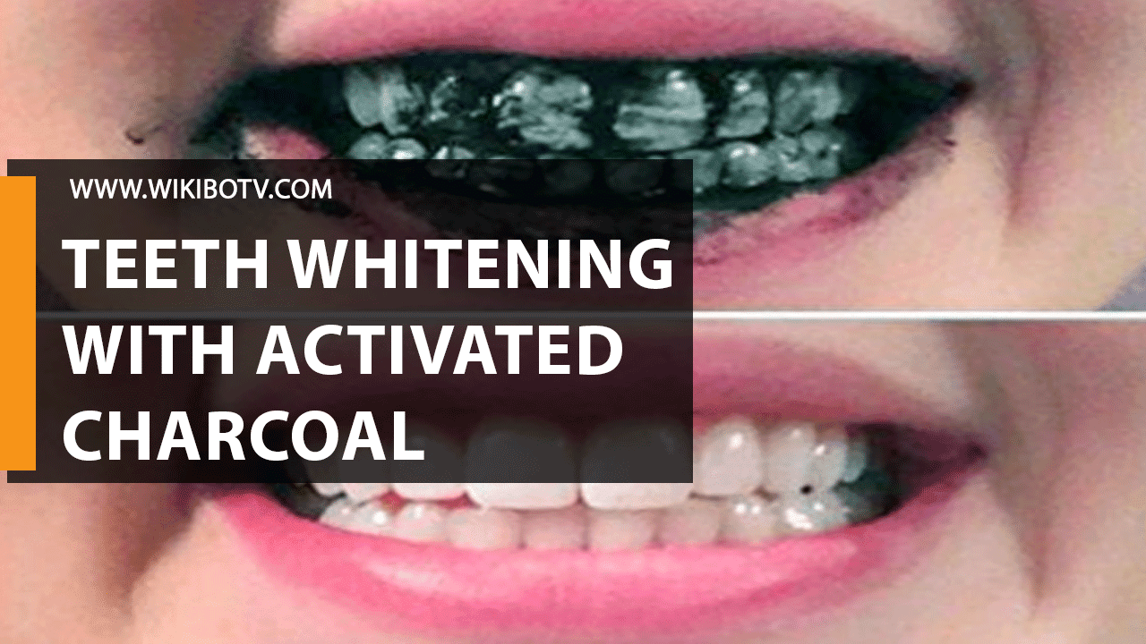 How To Whiten Teeth at Home With Activated Charcoal