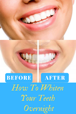 There are numerous reasons why people want to whiten their teeth.