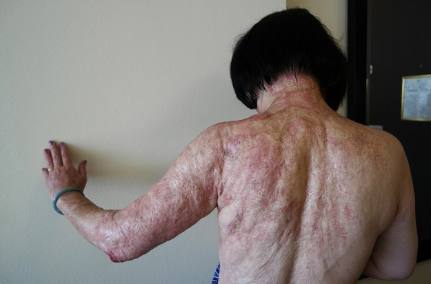 Napalm girl undergoing laser treatments to ease pain