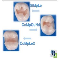 مصطلحات في تحضير الأسنان