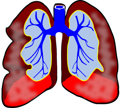 what are causes of asthma,what is asthma,asthma causes,asthma treatment