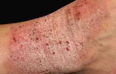 obat gatal pada selangkangan dan bokong di apotik terbukti ampuh