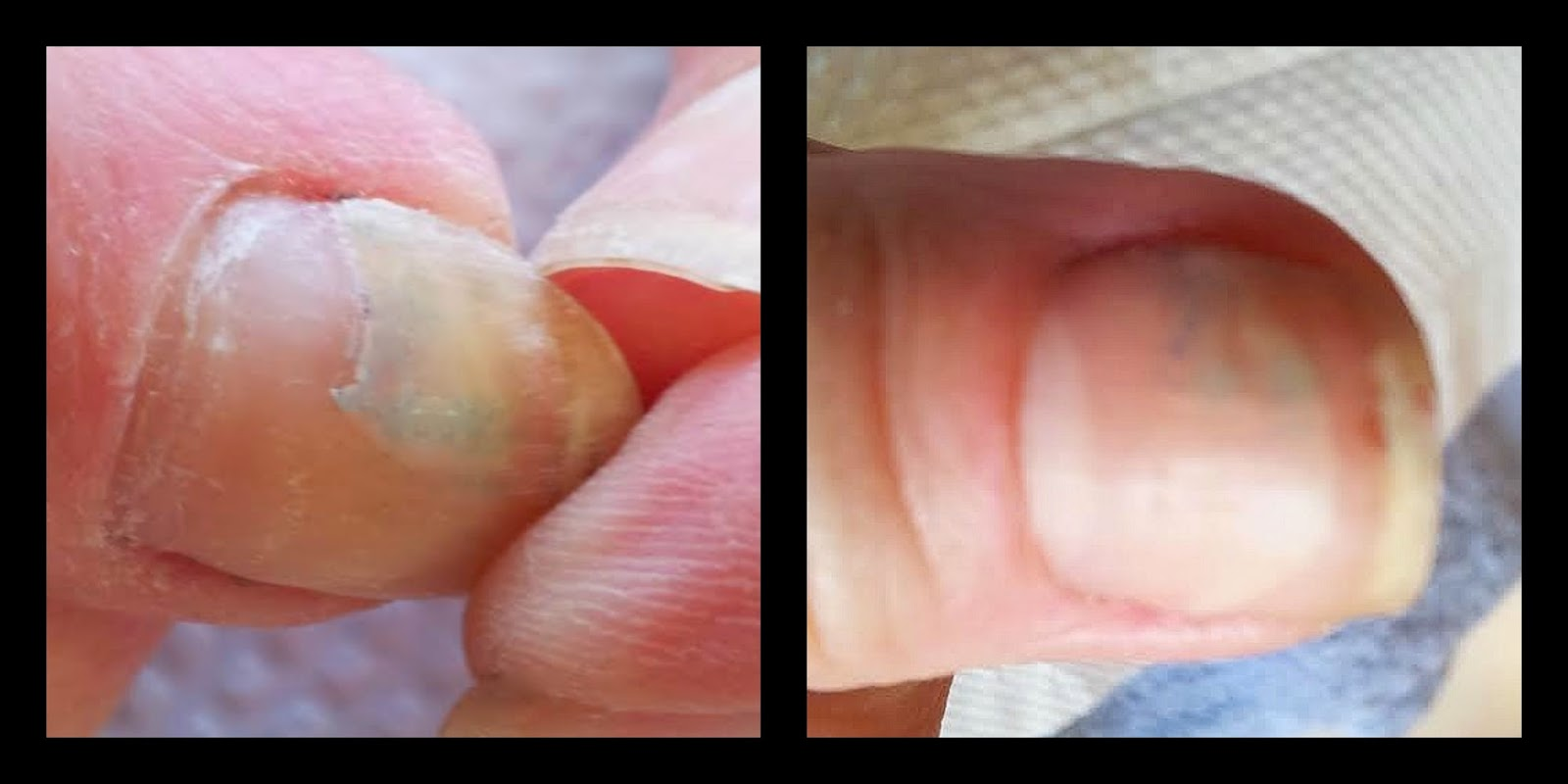 cracked nail repair before & after
