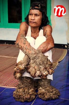 dede koswara is in 5 most bizarre men | Ajab Gjab | दुनिया की 5 सबसे विचित्र इंसान