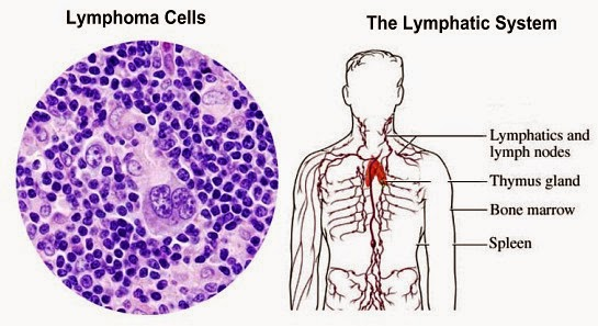 Lymphoma, Cancer Of The Lymphatic System