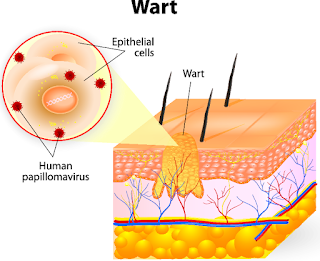 wart treatment in btm layout