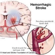 Pengobatan Untuk Sembuhkan Stroke Hemoragik