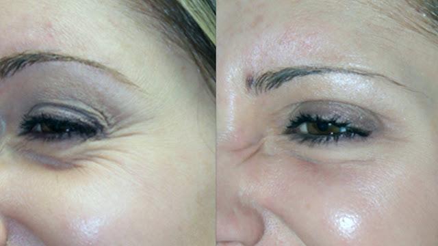 7 Cara Alami Menghilangkan Kerutan dibawah mata Anda