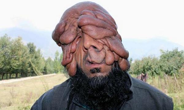 Manusia Tanpa Wajah Dari India Sangat Mengharukan