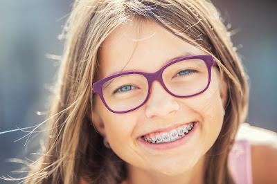 Niềng răng có ảnh hưởng đến sức khoẻ không?