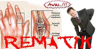 Obat rematik dengkul kaki