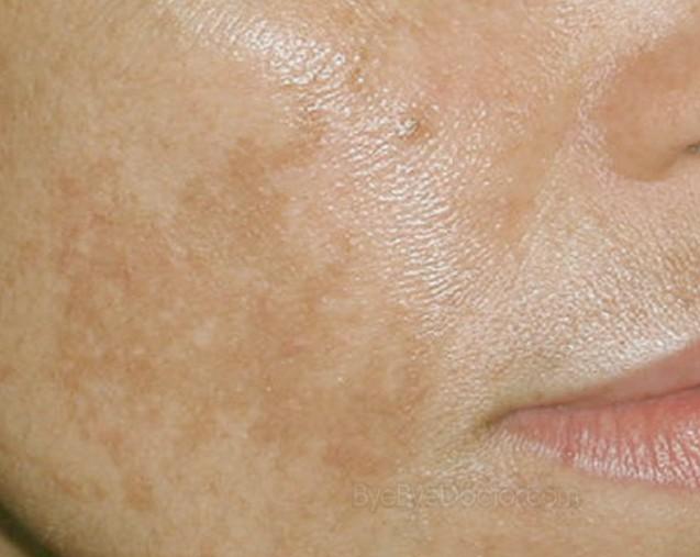 Como sacar manchas de sol de la cara