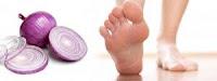 cebolla en los pies