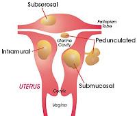 http://www.women-info.com/en/fibroids/