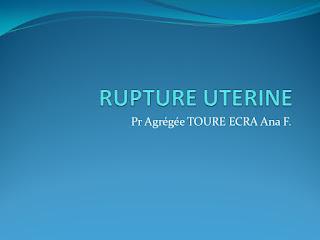 RUPTURE UTERINE .pdf