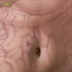 Aumenta o número de casos de câncer de intestino no País