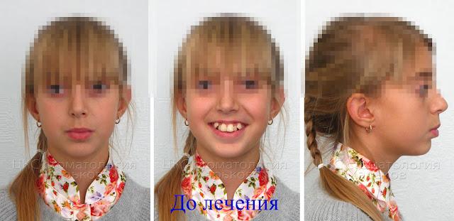 Лицо пациента до удаления зубов