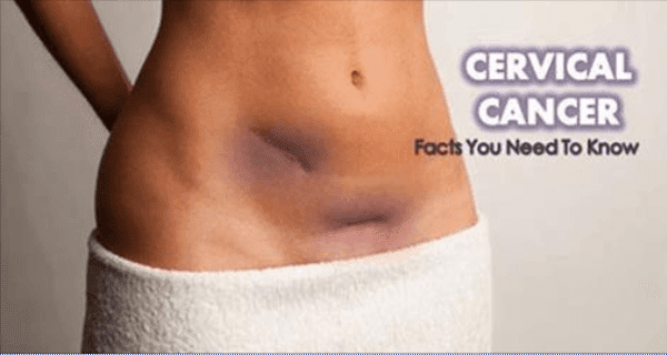 Breaking: CNN – 7 Signs of Cervical Cancer That Women Need to Observe