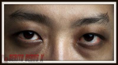 lingkar gelap dibawah mata, Sehat, tips kesehatan, Penelitian, Ulasan Berita, Berita Bebas,