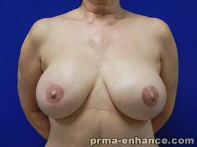 AFTER bilateral skin-sparing mastectomy and DIEP flap breast reconstruction